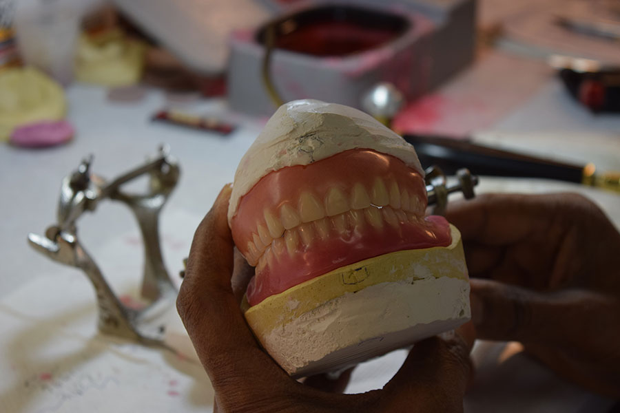Working on dental implants